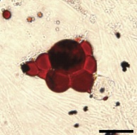 Adipose- derived stem cells. Source: Pendleton, Li, et. al. Mesenchymal Stem Cells Derived from Adipose Tissue vs Bone Marrow:In Vitro Comparison of Their Tropism towards Gliomas.  2013. PLOSONE.